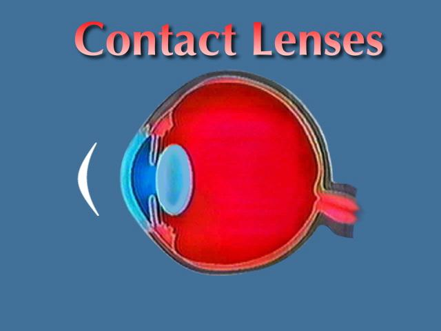 essay about contact lenses