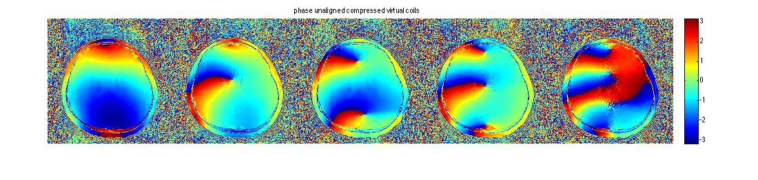 Geometric Decomposition Coil Compression